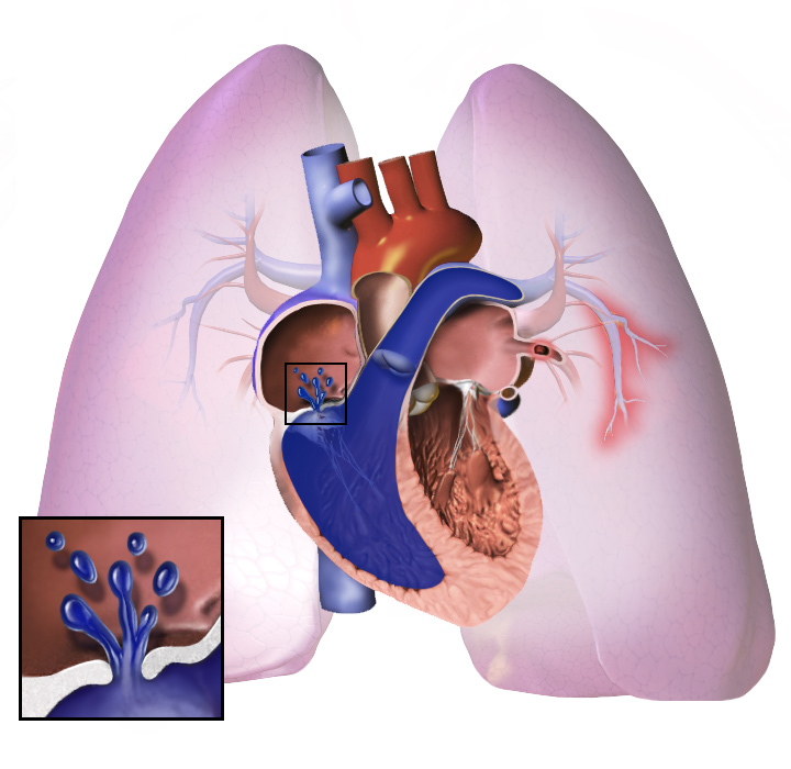 5.2 Target Organ Toxicity and Biomarkers - Pulmonary (1ECTS)